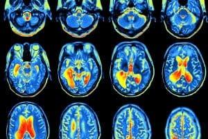 Catastrophic Brain Injury Compensation